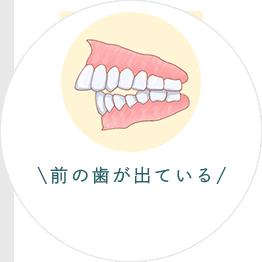 前の歯が出ている