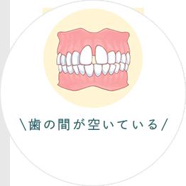 歯の間が空いている