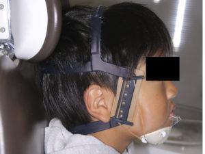 上顎前方牽引装置